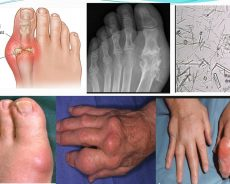 How to Prevent Chronic Gouty Arthritis Attack