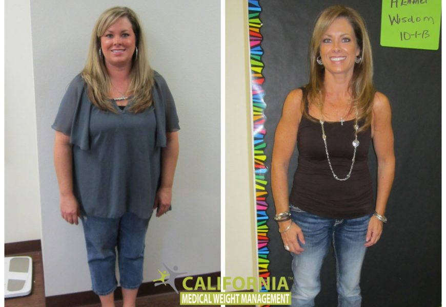 California Weight Loss Center – What are the services!!